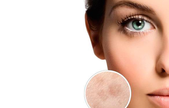 Darphin Melaperfect Cream Spf 20, la nueva crema hidratante antimanchas
