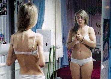 Trastornos de la alimentación: Parte II