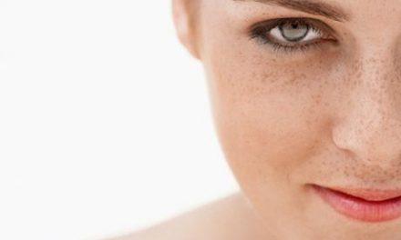 Como acabar con las manchas de la piel