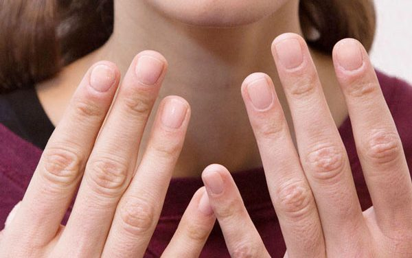 Diez consejos para uñas quebradizas y escamadas