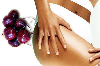 Remedios naturales para combatir las estrías