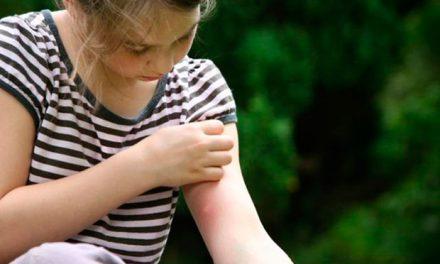 Como evitar que te piquen los mosquitos