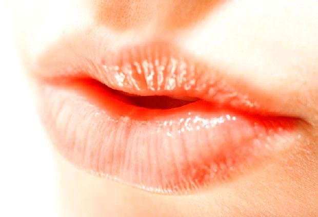 Labios secos y deshidratados