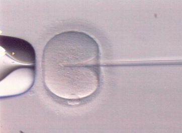 La inyección de espermatozoides, terapia estrella de la medicina reproductiva