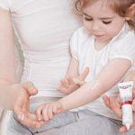 Niños y dermatitis atópica: ¿cómo tratarla?