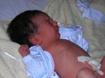 Recién nacido: Cuidados del cordón umbilical