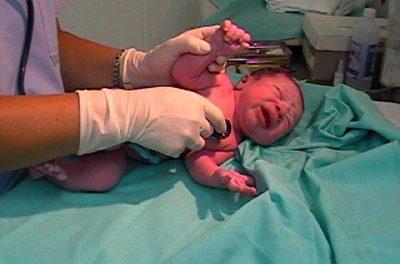 Problemas médicos en el recién nacido: El estreptococo del grupo B