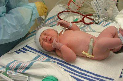 Problemas médicos en el recién nacido: sospecha de infección