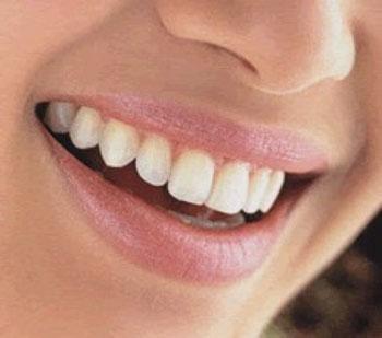 El embarazo y la pérdida de dientes están relacionados