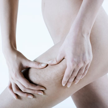 Tipos de celulitis, consejos y tratamientos