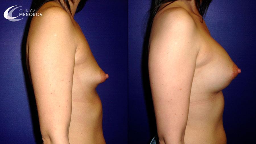 El sujetador que aumenta la dimensión del pecho
