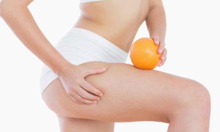 Celulitis, como combatirla y evitar su aparición