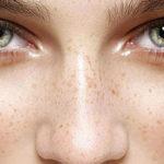 Como reducir las manchas oscuras de la piel