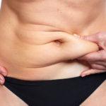 Cómo conseguir un vientre plano. Abdominoplastia, la solución definitiva a la grasa abdominal