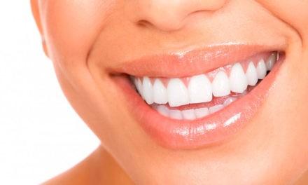 Waterpik, como conseguir una sonrisa bonita, pero además sana y cuidada