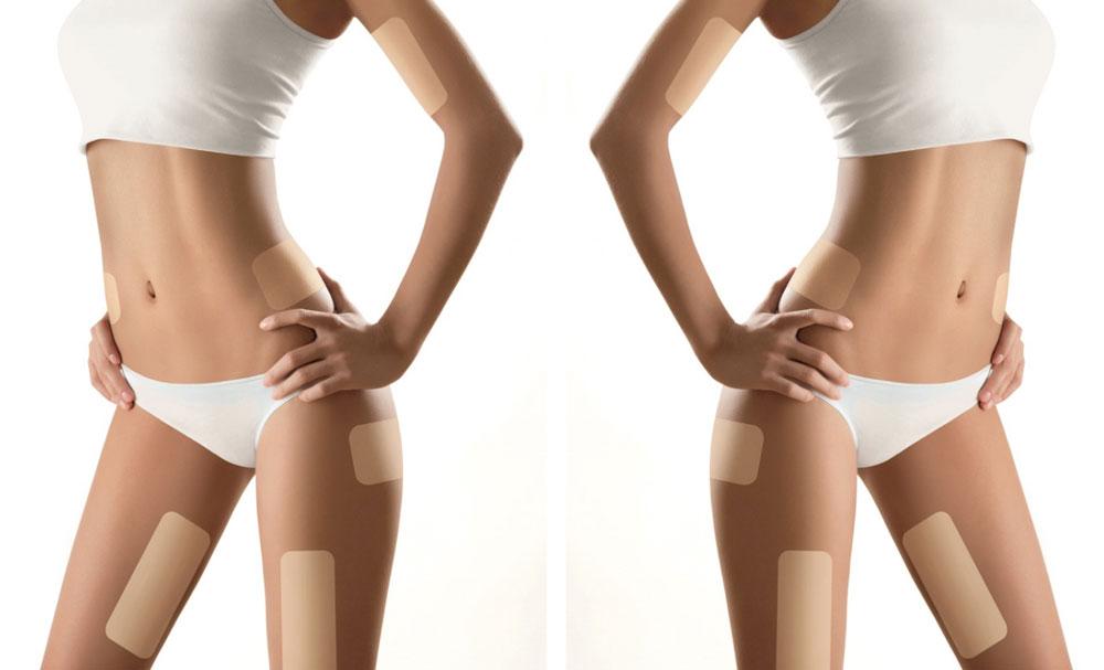 parches para adelgazar abdomen funcionando