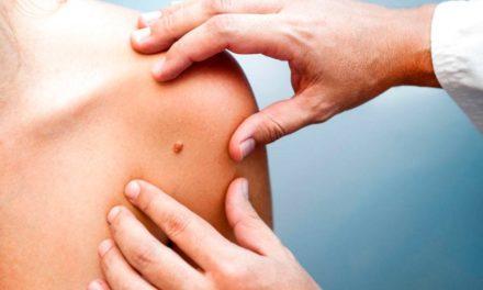 Cáncer de Piel: cómo detectar y prevenir su aparición