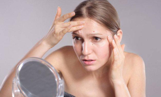 Manchas en la piel, 10 consejos para no volver con ellas después del verano