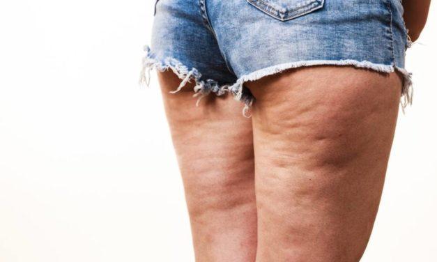 Celulitis, grasa localizada, cuales son los mejores productos