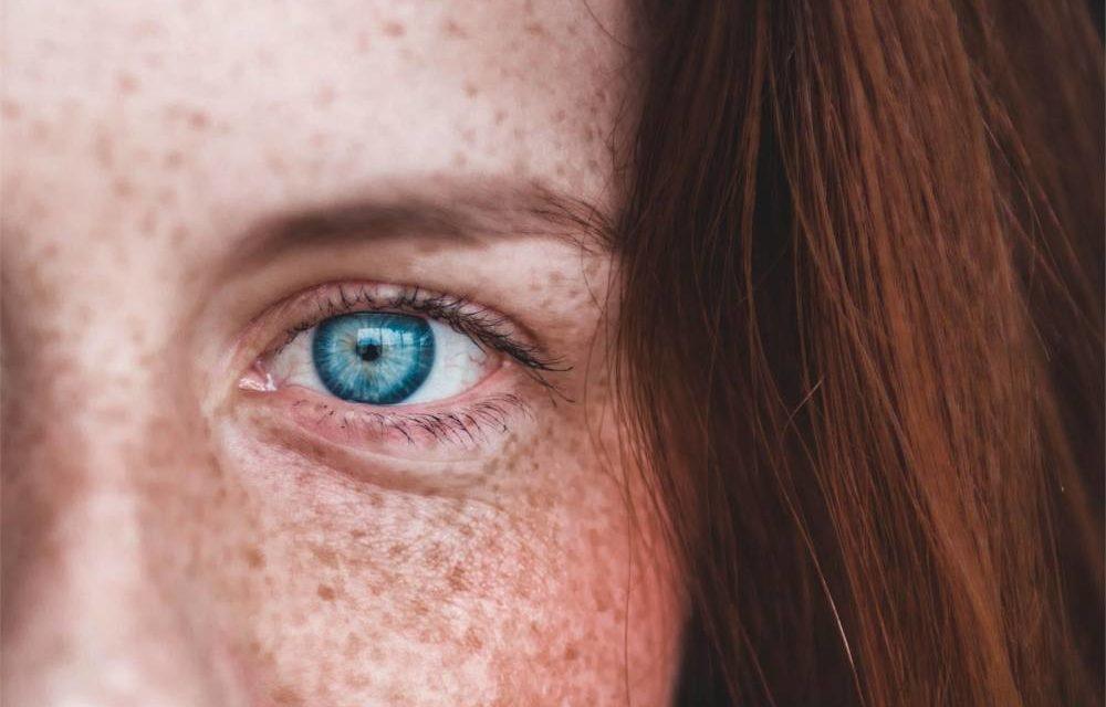 Como recuperar la piel después del verano