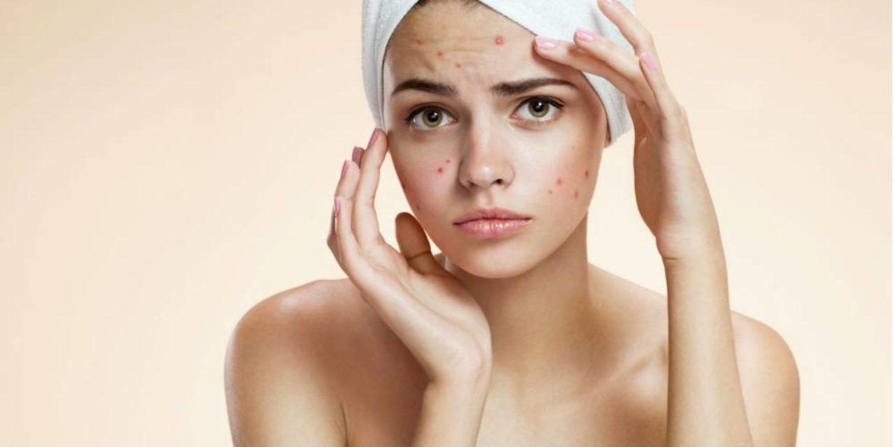 ¿Aceites para prevenir el acné? Increíble, pero cierto
