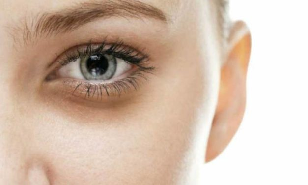 Ojeras: el mejor consejo para eliminarlas