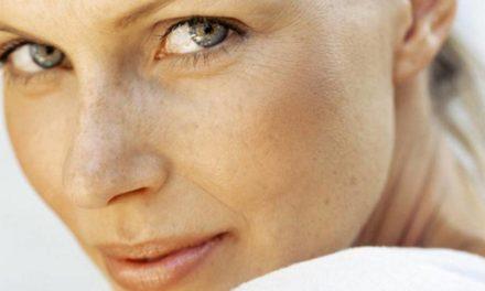 ¿Manchas en la piel? Como reducir y prevenir su aparición
