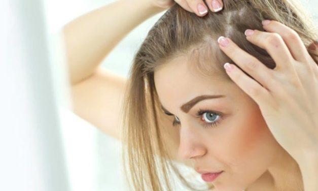 ¿Caída de pelo? Forcapil nos trae gominolas 100% naturales