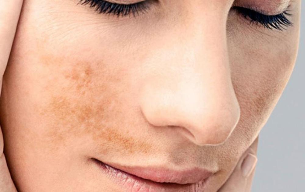¿Manchas en la piel? Niacinamida y ácido glicólico para acabar con ellas